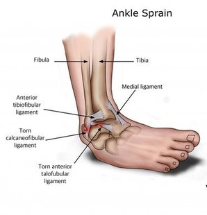 San Diego Podiatrist | San Diego Ankle Instability/Braces | CA | San Diego Podiatry Group |