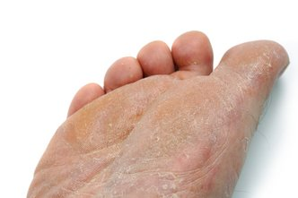 San Diego Podiatrist | San Diego Athlete's Foot | CA | San Diego Podiatry Group |