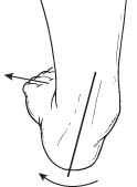 Inward rolling of the ankle