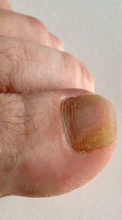 San Diego Podiatrist | San Diego Fungal Nails | CA | San Diego Podiatry Group |