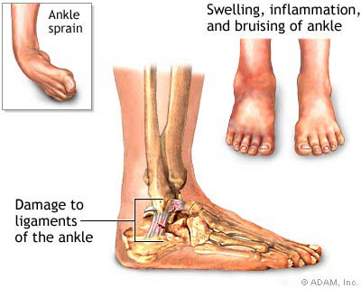 Image result for ankle sprain