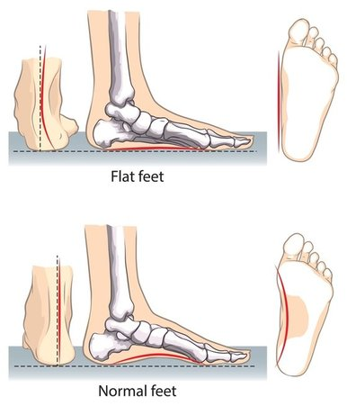 San Diego Podiatrist | San Diego Flatfoot (Fallen Arches) | CA | San Diego Podiatry Group |