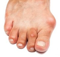 San Diego Podiatrist | San Diego Bunions | CA | San Diego Podiatry Group |